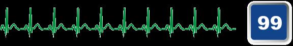ecg99 business diagnostic tool